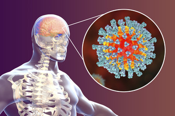 Measles-induced encephalitis, medical concept, 3D illustration showing brain infection and close-up view of Measles viruses
