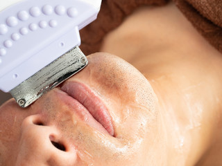 頬のヒゲ脱毛の施術受ける男性