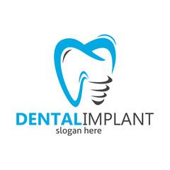 dental braces logo, dental implant, dental logo design