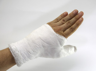 Hand cast fractured after a car accident