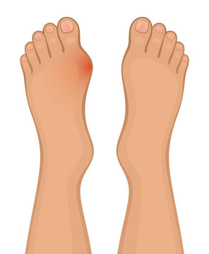 Foot disease on a white background