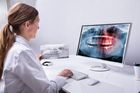 Dentist Looking At Teeth X-ray On Computer