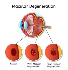 Macular Degeneration Vector Medical Diagram with Eye Anatomy Internal Structure Illustration and Eyesight Disease Types Explanation. Age Related Eyesight Problem, Vision Loss Chart on White Background