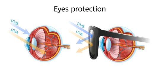 Eyes Protection Vector Infographic with Human Eyeball Anatomical Structure in Cross Section View Comparing Sun Rays Impact on Naked and Protected Black Sunglasses Eye Isolated on White