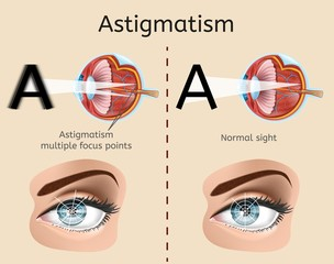 Astigmatism Vector Diagram with Human Eye Cross Section Anatomical Illustration and Difference Demonstration of Impaired Vision and Normal Sight. Eyesight Defect, Eye Disease Diagnosis Medical Scheme
