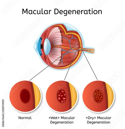 Macular Degeneration Vector Medical Diagram With Eye Anatomy