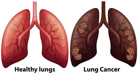 Human Anatomy of Lung Condition