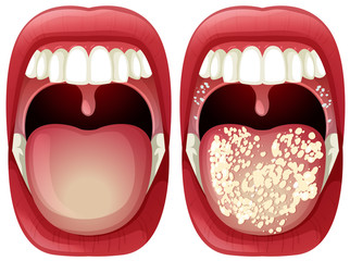 Vector of Healthy and Virus Mouth