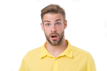 Man with beard or unshaven guy looks handsome and well groomed. Guy bearded and attractive cares about his appearance. Skin care concept. Man with bristle on surprised face, isolated white background