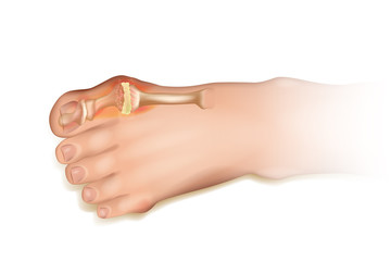 Gout.  Human foot illustration