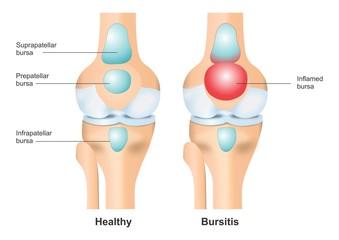 Healthy Knee vs Bursitis Illustration