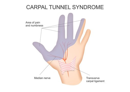 Carpal Tunnel Syndrome Diagram