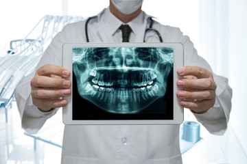Dentist holding a digital tablet with x-ray of teeth in dental office
