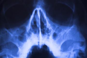 Medical xray face scan
