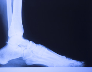 Medical xray foot scan