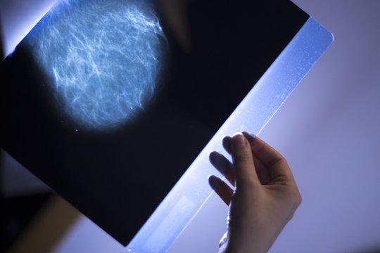 Xray breast scan mammogram