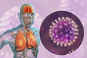Nipah virus infection, newly emerging zoonotic infection with acute respiratory syndrome and severe encephalitis, 3D illustration