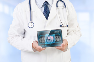 Doctor holding tablet displaying cerebral activity scan on screen