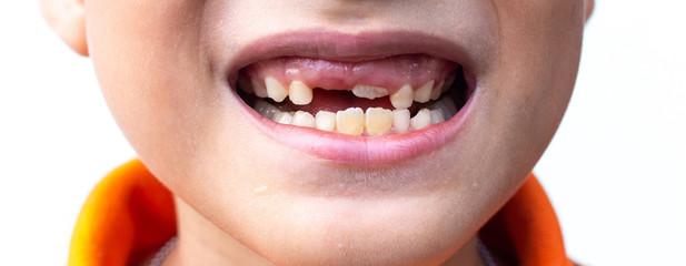 Little boy show Broken teeth.boy with a broken and rotten teeth