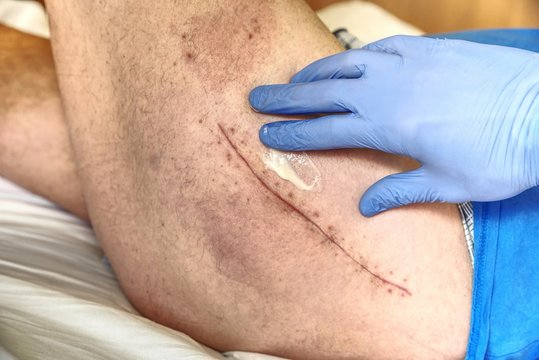 Patient with a fresh long scar after a hip surgery. Macro,  Human leg