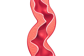 Cholesterol plaque in artery on isolated background
