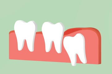 wisdom tooth ( angular or mesial impaction ) with inflammation affect to other teeth