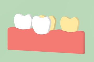 tooth whitening by veneers teeth