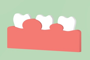 gingivitis or periodontal disease, inflammation of the gum tissue around the teeth