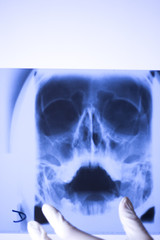 Medical xray face scan