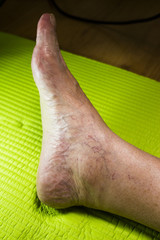 Varicose veins in the ankle of an older woman
