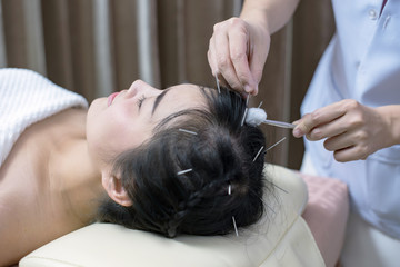 Therapist Giving acupuncture treatment needle on the head for Hair transplant  treatment at the health spa; acupuncturist doctor makes a therapy for asian young woman at asian beauty clinic.