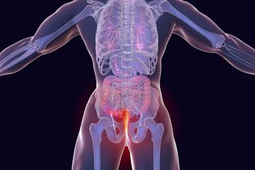 Hemorrhoids treatment and prevention concept, 3D illustration