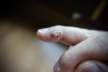 treatment wart on finger by salicylic acid, in this picture show what's happening after use salicylic acid in 3 days