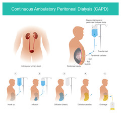 Continuous Ambulatory Peritoneal Dialysis CAPD