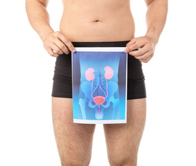 Young man holding picture of urinary system on white background