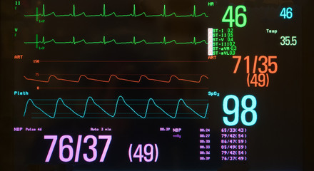 Monitor with Bradycardia on the ECG and Hypotension on the red arterial line.