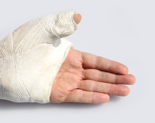 hand with chalk to immobilize the thumb with a broken bone
