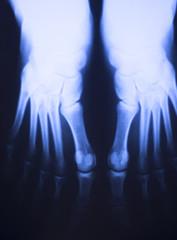 Medical xray foot scan