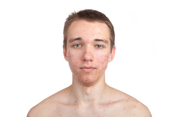 Handsome young man with skin problem