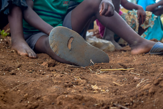 Poor young villager with worn out shoes in Malawi, Africa