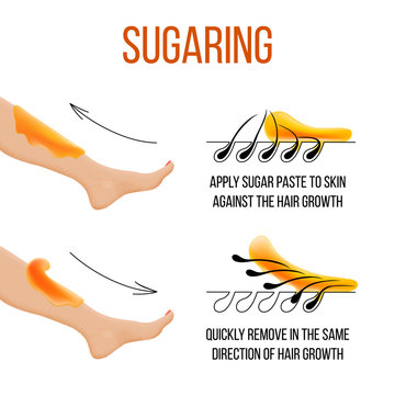 Depilation and sugaring. Hair removal. follicle. Woman leg with sugar or wax. Before and after. Process and steps of depilation. vector illustration