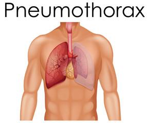 A Human Anatomy of Pneumothorax
