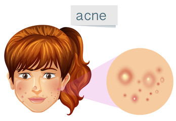 A Young Lady Acne on Face