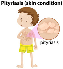 magnified pityriasis on young boy