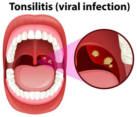 A Human Mouth Tonsillitis Infection
