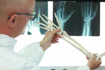 professional with upper limb model browsing hand bones