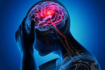 Schlaganfall - Blutversorgung im Gehirn