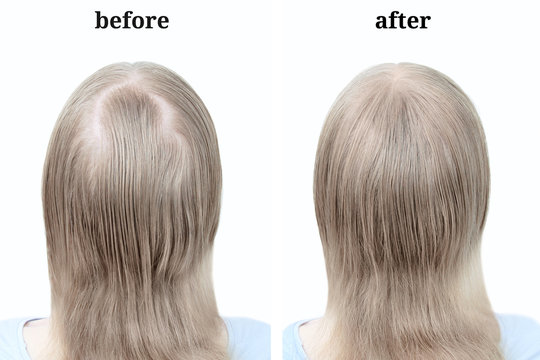 Women's blond hair after using cosmetic powder to thicken hair. Before and after