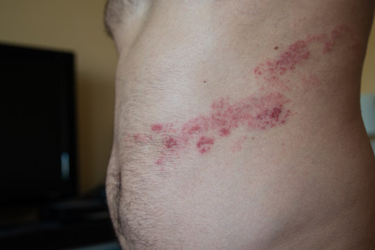 close up on herpes zoster on the stomach