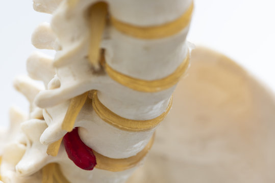 Close-up view of herniated lumbar disc model